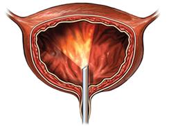 Недержание мочи у сук, причины, диагностика и лечение